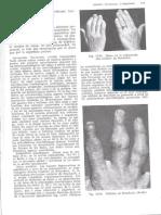 Exploracion de Manos y Dedos_Suros