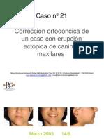 CASO_CLINICO_DRGALLARDO21.pdf