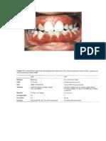 gingivo estomatitis herpetica.doc