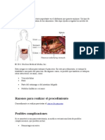 pancreatectomia.doc