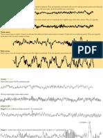 Brainwaves (Sleep) diagrams - VCE Psychology .pptx
