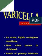 Varicella Inggris