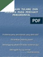 Kerusakan Tulang Dan Polanya Pada Penyakit Periodontal