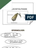 colecistolitiasis