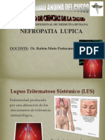 Nefropatia Lupica II