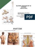 Bilateral Dislokasi Hip