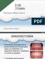 Tecnica de Gngivectomia