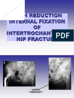 Intertrochantric hip fracture.