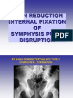 simphysis pubis disruption.