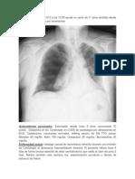 Caso Clinico Pneumotorax