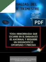 Charla Hemorragia Primer Trimestre