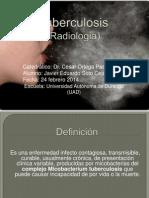 Tuberculosis (Imaginologia)