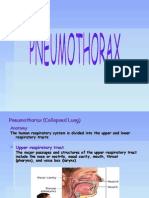 Pneumothorax (Collapsed Lung)