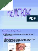 Pneumothorax (Collapsed Lung)