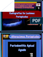 Radiografías de Lesiones Periapicales