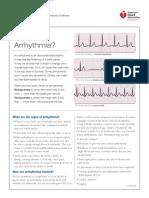 What is an Arrhythmia?