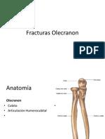 Fracturas Olecranon