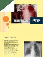 Tuberculosis (1)