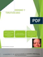Hipertiroidismo y Tirotixicosis