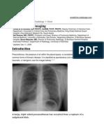 Pneumothorax Imaging