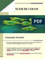cancer de colon.ppt
