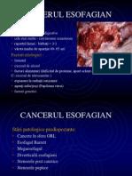 Cc Esofagian