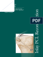 Arthroscopic Inlay PCL Reconstruction Using the FlipCutter and PCL TightRope