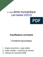 Cours ECG - Ischemie Myocardique I