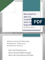 Neuropatía óptica isquémica asociada a migraña