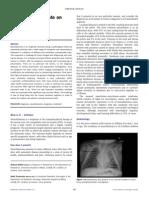 Neuroblastoma Review