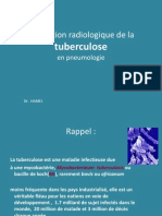 TD 4année RX tuberculose