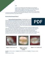 restorasi plastis komposit