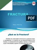 FRACTURA dipositiva