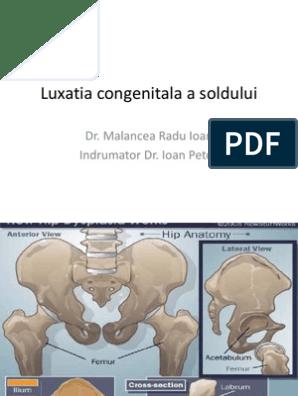 osificarea întârziată a tratamentului articulațiilor șoldului