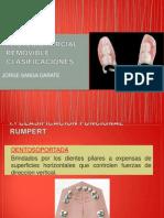 Clasificaciones -Protesis Parcial Removible