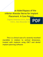 Computeinr Aided Bypass of the Inferior Alveolar Nerve