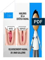 Vaginoplastia - Rejuvenecimiento Vaginal