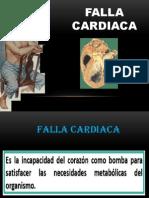 Falla Cardiaca Exp