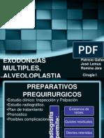 Extracciones Multiples (1)