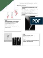 Biomecánica de los huesos