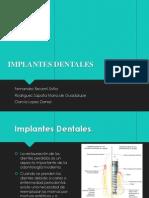 Tipos de Implante