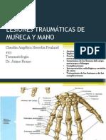 Lesiones Traumaticas de Munieca y Mano