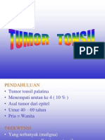 Tumor Tonsil