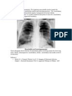 LO Radiologic Pattern of Bronchopneumonia