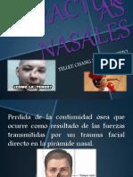 fracturas nasales