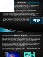 osteo artritititis 1.pptx