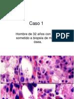 Biopsia de médula ósea