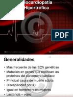 _Miocardiopatía hipertrofica