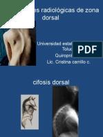 CLASE 5 Marcaciones Dorsales