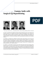 Surgery for Gummy Smile
